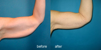 Surgeries - Arm Lift Before After