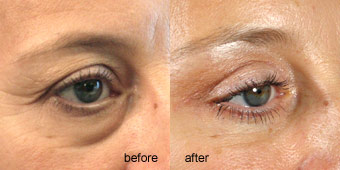 Surgeries - Eyelid Before After