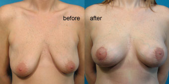 Surgeries - Breast Lift Before After