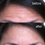Injectables - Botox Before After