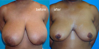 Surgeries - Reduction Before After