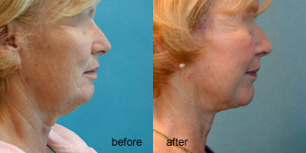Surgeries - Facelift Before After