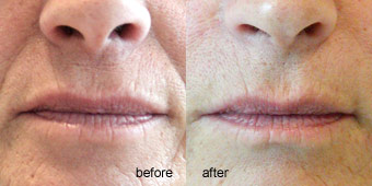 Injectables - Fillers Before After