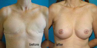 Surgeries - Reconstruction Before After