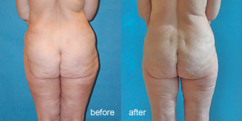 Surgeries - Liposuction Before After