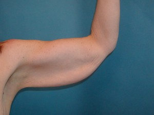 Patient arm before procedure