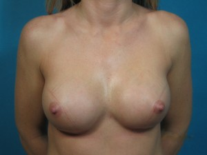 Patient after breast augmentation procedure