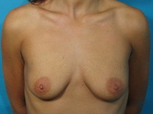 Patient before breast augmentation procedure