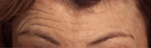 Forehead lines before botox treatment