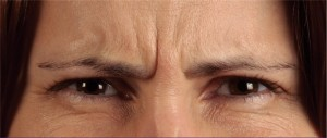 Frown lines before botox treatment