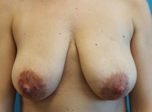 Patient before mastopexy procedure