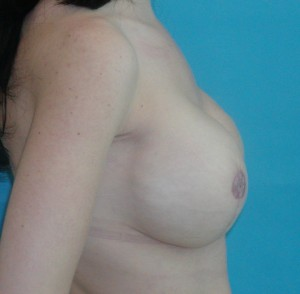 Patient after breast reconstruction using implants