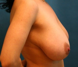 Patient before breast reconstruction using implants