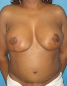 Patient after breast reconstruction using TRAM
