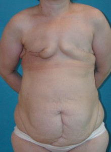 Patient before breast reconstruction using TRAM