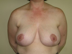 Patient after breast reduction procedure