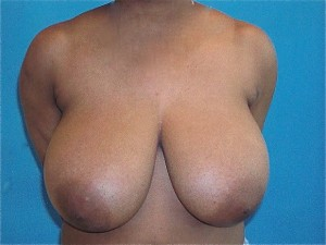 Patient before breast reduction procedure