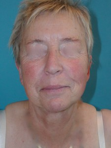 Patient after facelift procedure