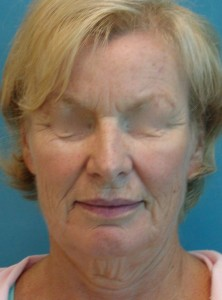 Patient before facelift procedure