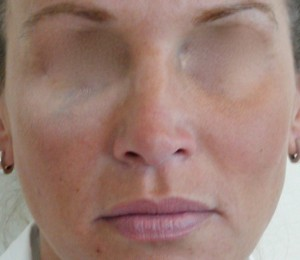 Fillers - Cheeks after treatment