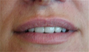 Fillers - Lips after treatment