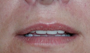 Fillers - Lips before treatment