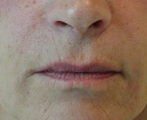 Fillers - Nasal labial fold after treatment