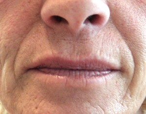 Fillers - Nasal labial fold before treatment