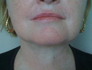 Patient after liposuction procedure
