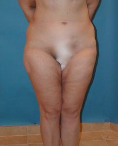 Patient before liposuction procedure